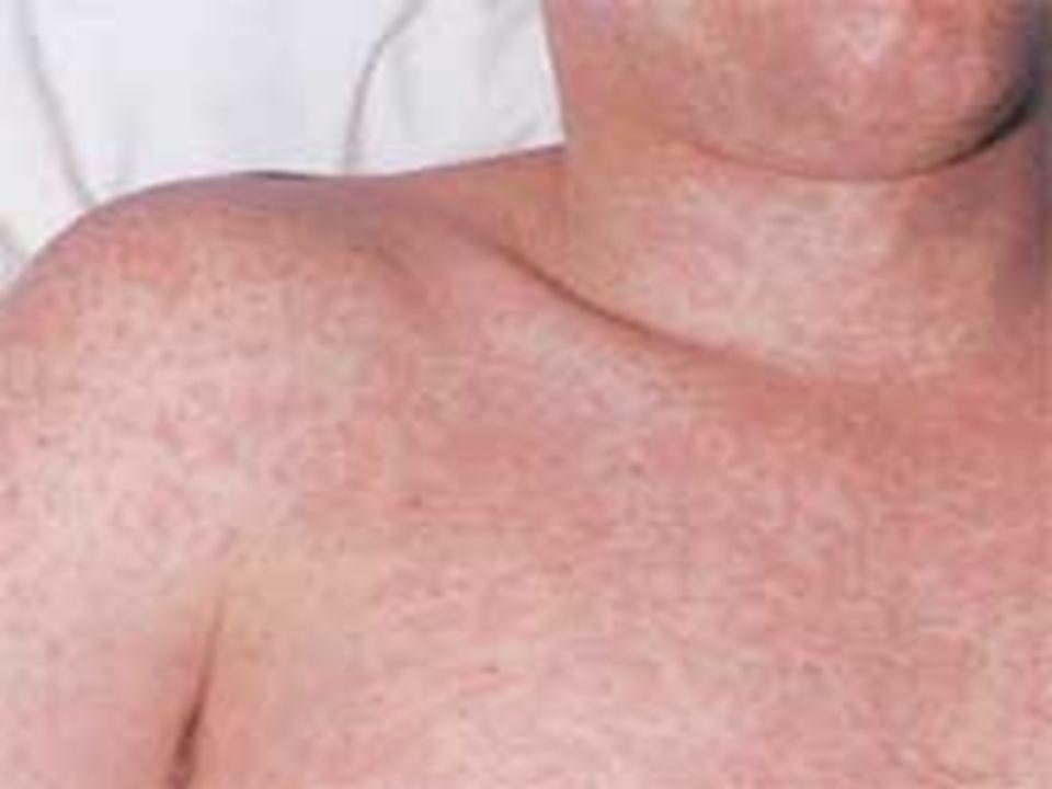 RUBÉOLA TRANSMISSÃO Saliva SINTOMAS Febre, inchaço dos linfonodos Feto: catarata, retardo, surdez ou morte PROFILAXIA Vacinação