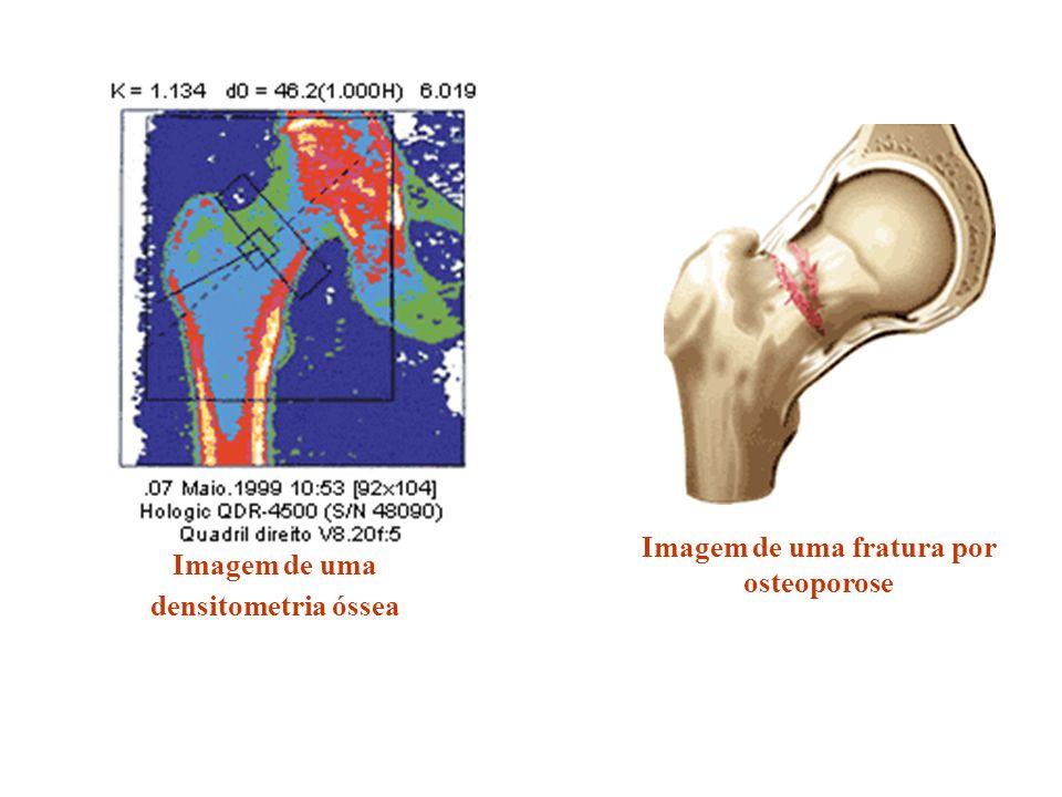 Imagem de uma fratura por osteoporose Imagem de uma densitometria óssea