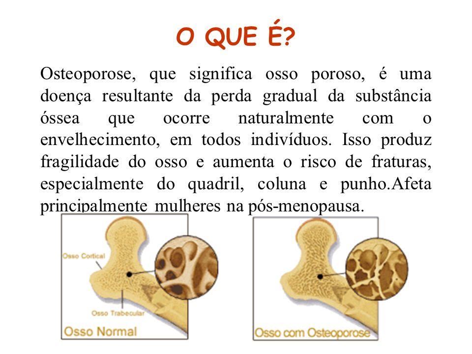 O QUE É? Osteoporose, que significa osso poroso, é uma doença resultante da perda gradual da substância óssea que ocorre naturalmente com o envelhecim