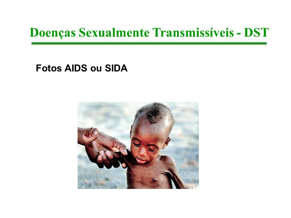 Fotos AIDS ou SIDA