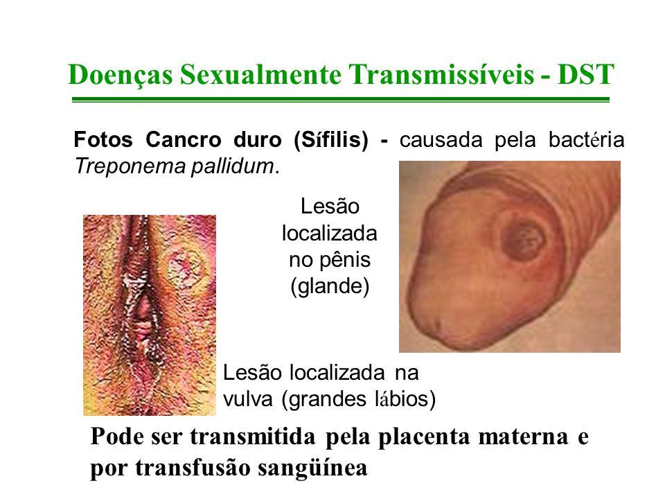 Doenças Sexualmente Transmissíveis - DST Fotos Cancro duro (S í filis) - causada pela bact é ria Treponema pallidum. Lesão localizada na vulva (grande