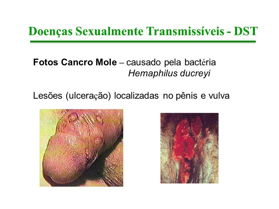 Fotos Cancro Mole – causado pela bact é ria Hemaphilus ducreyi Lesões (ulcera ç ão) localizadas no pênis e vulva Doenças Sexualmente Transmissíveis -