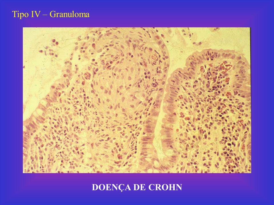 Tipo IV – Granuloma Schistossoma mansoni - granuloma schistossomótico em fígado, causado pela presença de ovos do parasito (setas).