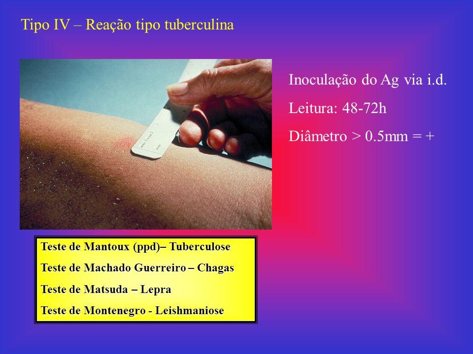 Tipo IV – Reação tipo tuberculina Inoculação do Ag via i.d. Leitura: 48-72h Diâmetro > 0.5mm = + Teste de Mantoux (ppd)– Tuberculose Teste de Machado
