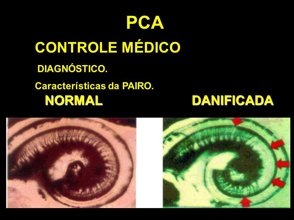 PCA CONTROLE MÉDICO DIAGNÓSTICO. Características da PAIRO. NORMALDANIFICADA
