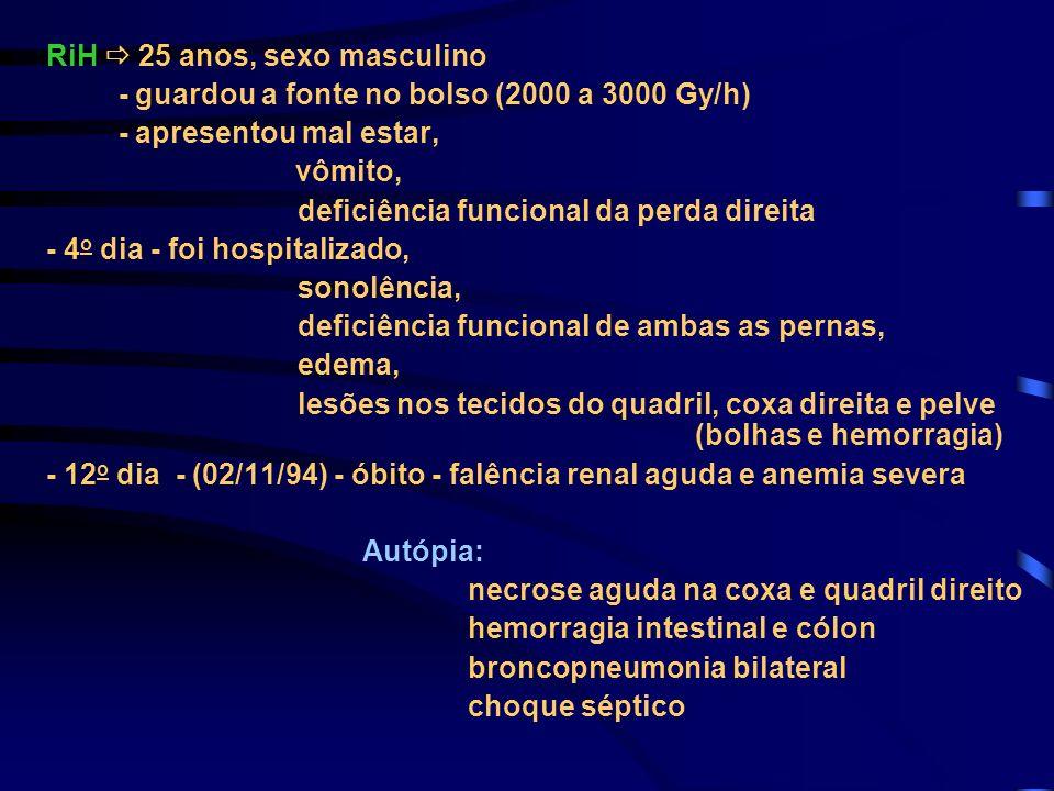 RiH 25 anos, sexo masculino - guardou a fonte no bolso (2000 a 3000 Gy/h) - apresentou mal estar, vômito, deficiência funcional da perda direita - 4 o
