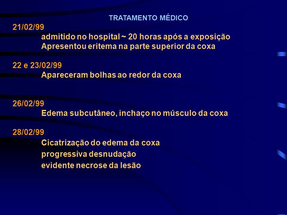 TRATAMENTO MÉDICO 21/02/99 admitido no hospital ~ 20 horas após a exposição Apresentou eritema na parte superior da coxa 22 e 23/02/99 Apareceram bolh