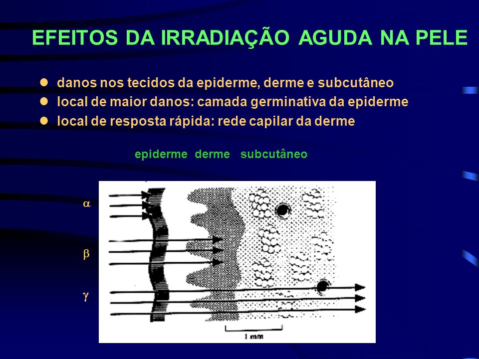 EFEITOS DA IRRADIAÇÃO AGUDA NA PELE ldanos nos tecidos da epiderme, derme e subcutâneo llocal de maior danos: camada germinativa da epiderme llocal de
