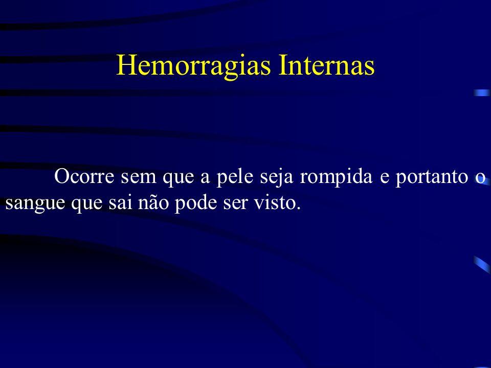 Hemorragias Internas Ocorre sem que a pele seja rompida e portanto o sangue que sai não pode ser visto.