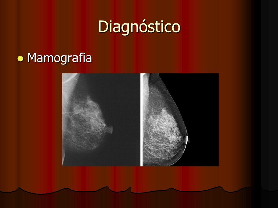 Diagnóstico Mamografia Mamografia
