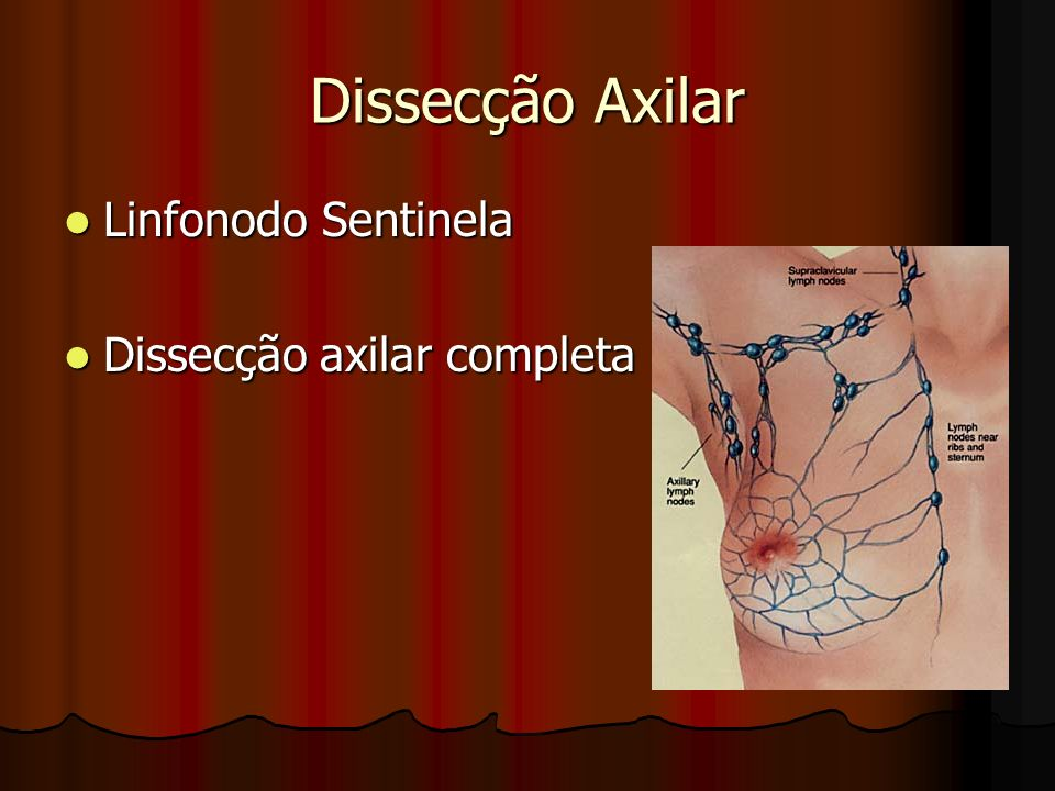 Dissecção Axilar Linfonodo Sentinela Linfonodo Sentinela Dissecção axilar completa Dissecção axilar completa