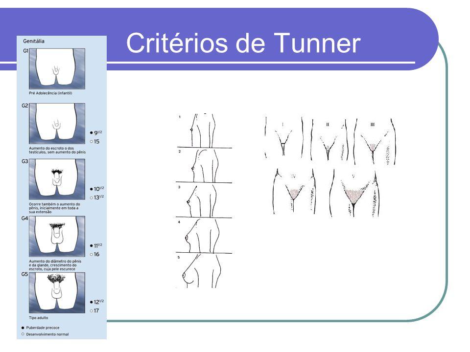 Critérios de Tunner