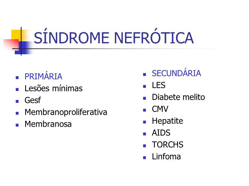 SÍNDROME NEFRÓTICA PRIMÁRIA Lesões mínimas Gesf Membranoproliferativa Membranosa SECUNDÁRIA LES Diabete melito CMV Hepatite AIDS TORCHS Linfoma