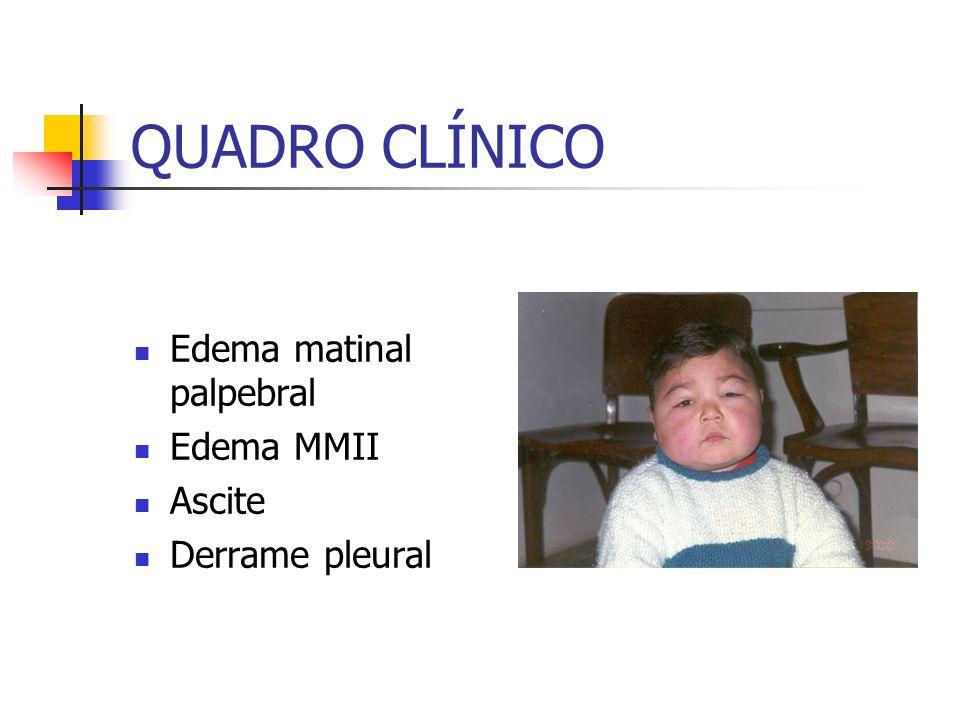 QUADRO CLÍNICO Edema matinal palpebral Edema MMII Ascite Derrame pleural