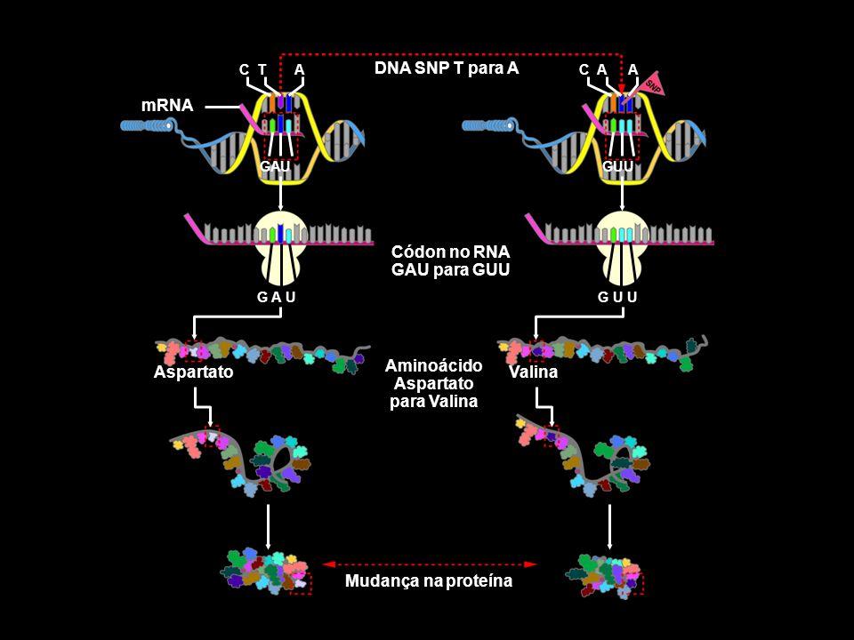 DNA SNP T para A Códon no RNA GAU para GUU Aminoácido Aspartato para Valina Mudança na proteína Aspartato Valina mRNA C T G A UG U U GAUGUU C AAA