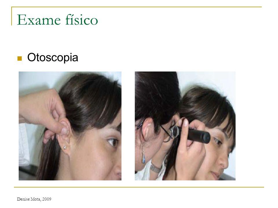 Denise Mota, 2009 Exame físico Orofaringe úvula amigdalas língua