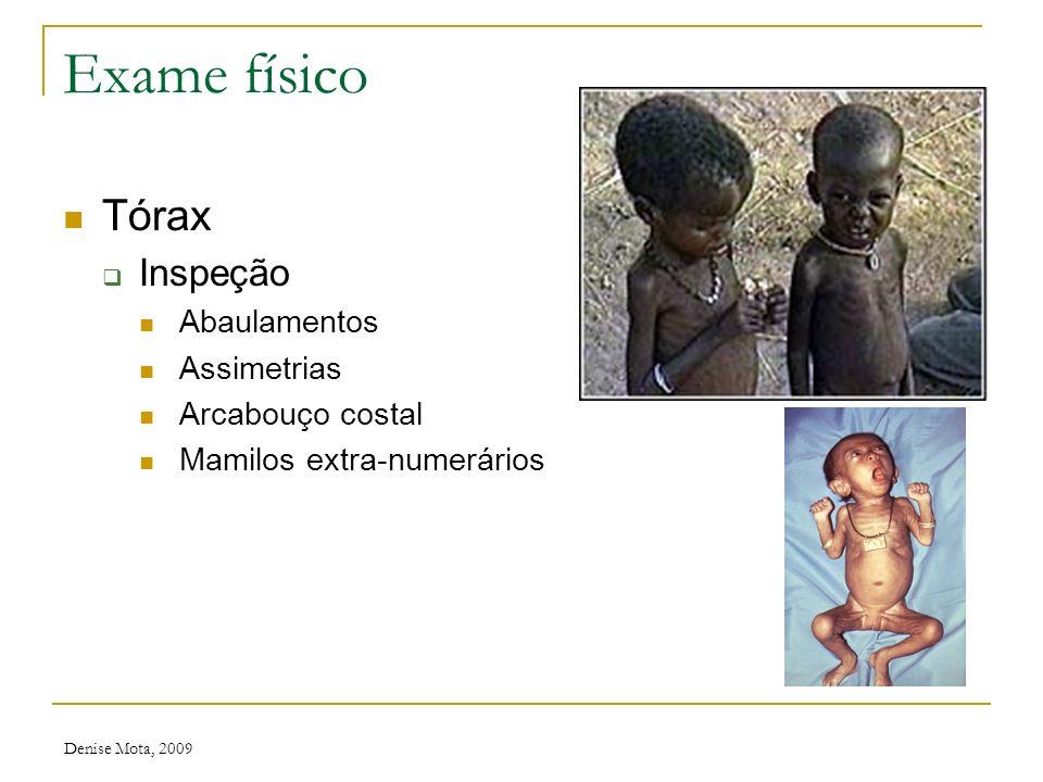 Denise Mota, 2009 Exame físico Otoscopia 1. Apófise Lateral Martelo 2.Umbo 3.Uncus 4.Apófise Longa Martelo 5.ParsTensa 6.ParsFlácida 7.Reflexo Luninos