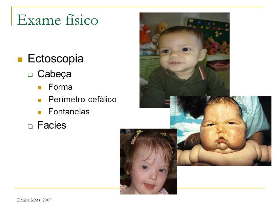 Denise Mota, 2009 Semiologia pediátrica Peculiaridades Varia de acordo com a idade Conversar com a criança antes e durante o exame Sinais vitais inici