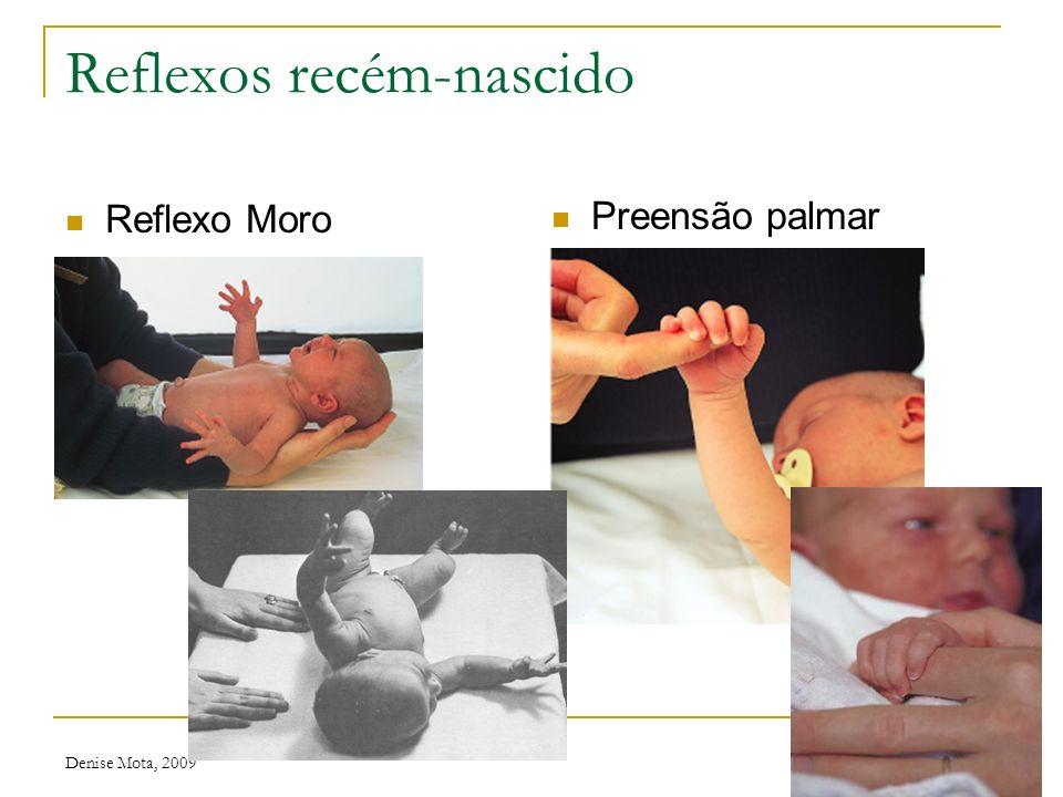 Denise Mota, 2009 Recém-nascido Postura Reflexo tônico-cervical
