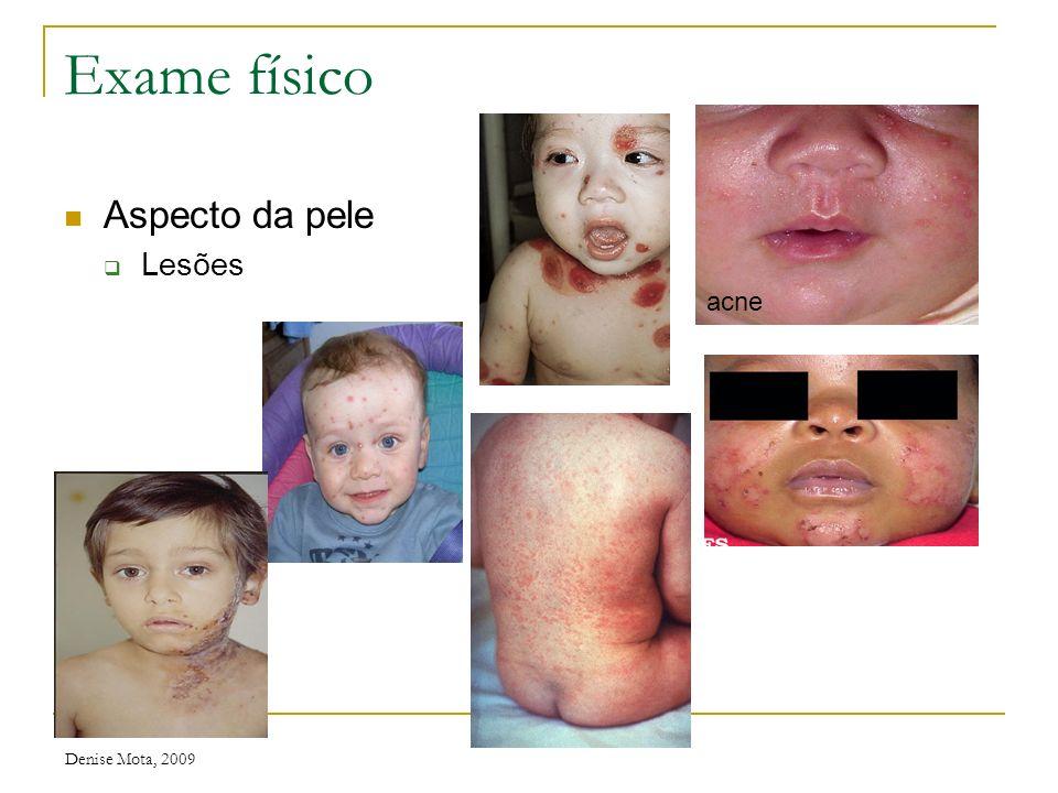 Denise Mota, 2009 Exame físico Aspecto da pele Coloração Palidez Icterícia Cianose