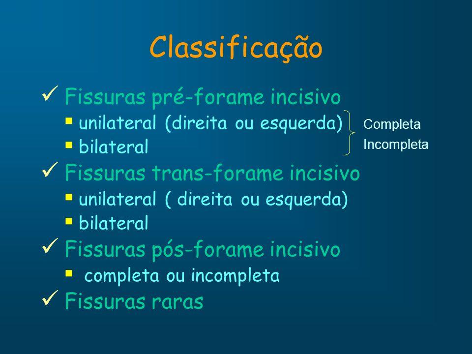 Classificação Fissuras pré-forame incisivo unilateral (direita ou esquerda) bilateral Fissuras trans-forame incisivo unilateral ( direita ou esquerda)