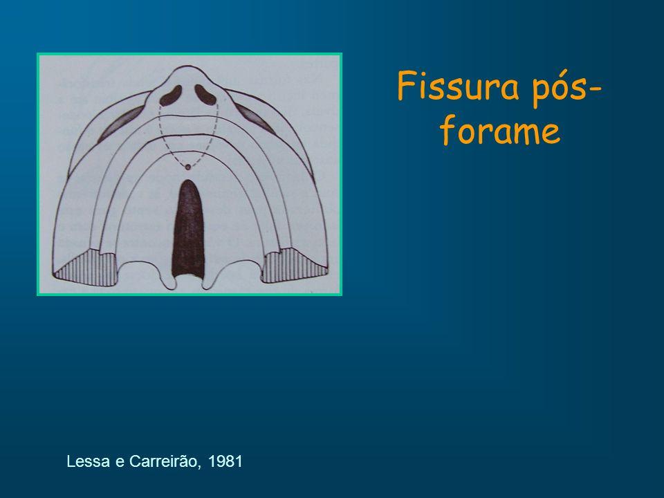Fissura pós- forame