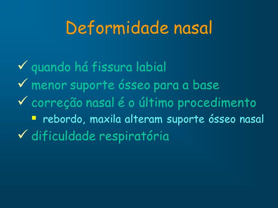 Deformidade nasal quando há fissura labial menor suporte ósseo para a base correção nasal é o último procedimento rebordo, maxila alteram suporte ósse