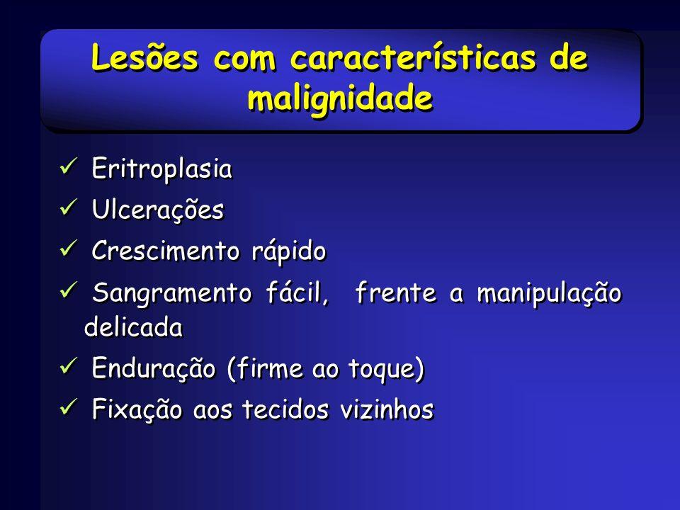 Lesões com características de malignidade Eritroplasia Ulcerações Crescimento rápido Sangramento fácil, frente a manipulação delicada Enduração (firme