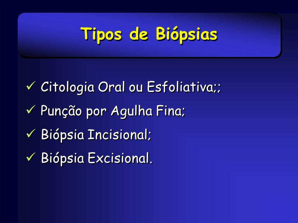 Tipos de Biópsias Citologia Oral ou Esfoliativa;; Punção por Agulha Fina; Biópsia Incisional; Biópsia Excisional. Citologia Oral ou Esfoliativa;; Punç