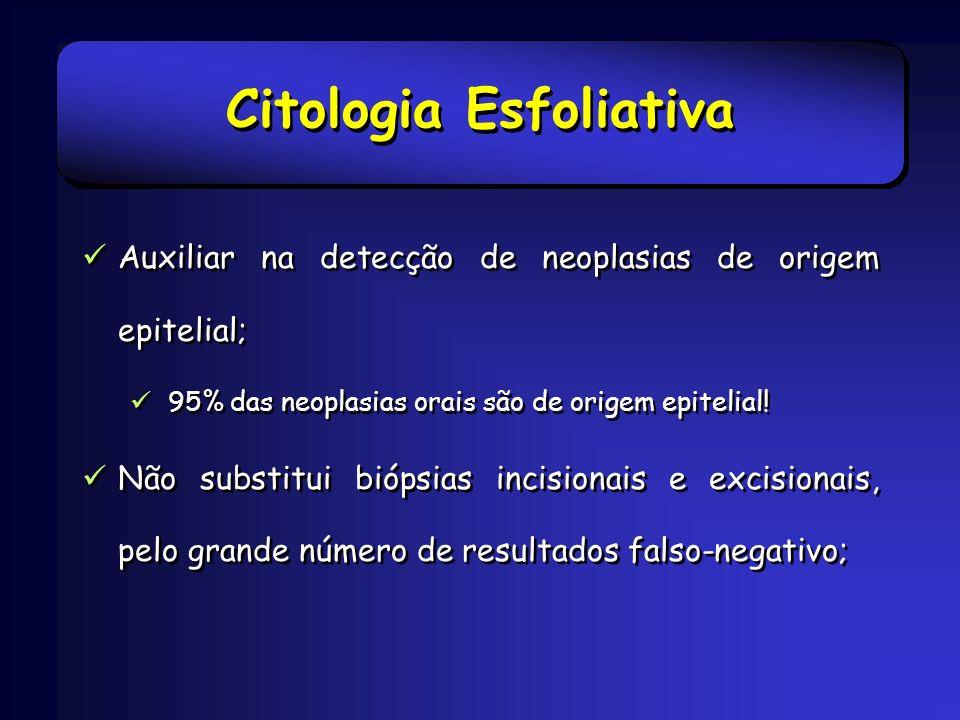 Citologia Esfoliativa Auxiliar na detecção de neoplasias de origem epitelial; 95% das neoplasias orais são de origem epitelial! Não substitui biópsias
