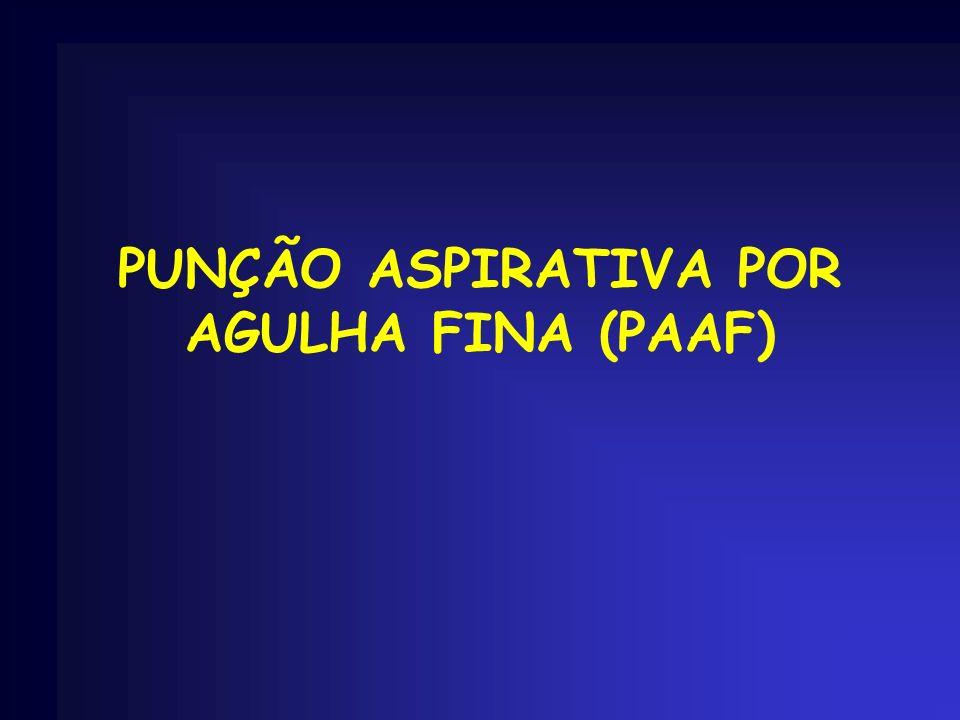 PUNÇÃO ASPIRATIVA POR AGULHA FINA (PAAF)