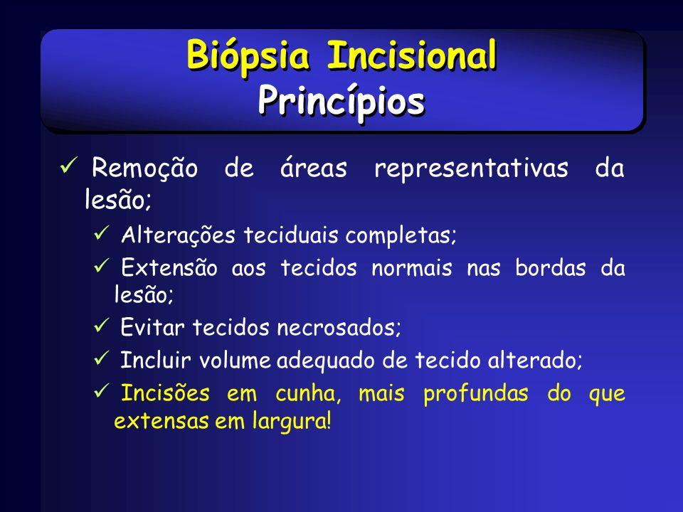 Biópsia Incisional Princípios Remoção de áreas representativas da lesão; Alterações teciduais completas; Extensão aos tecidos normais nas bordas da le