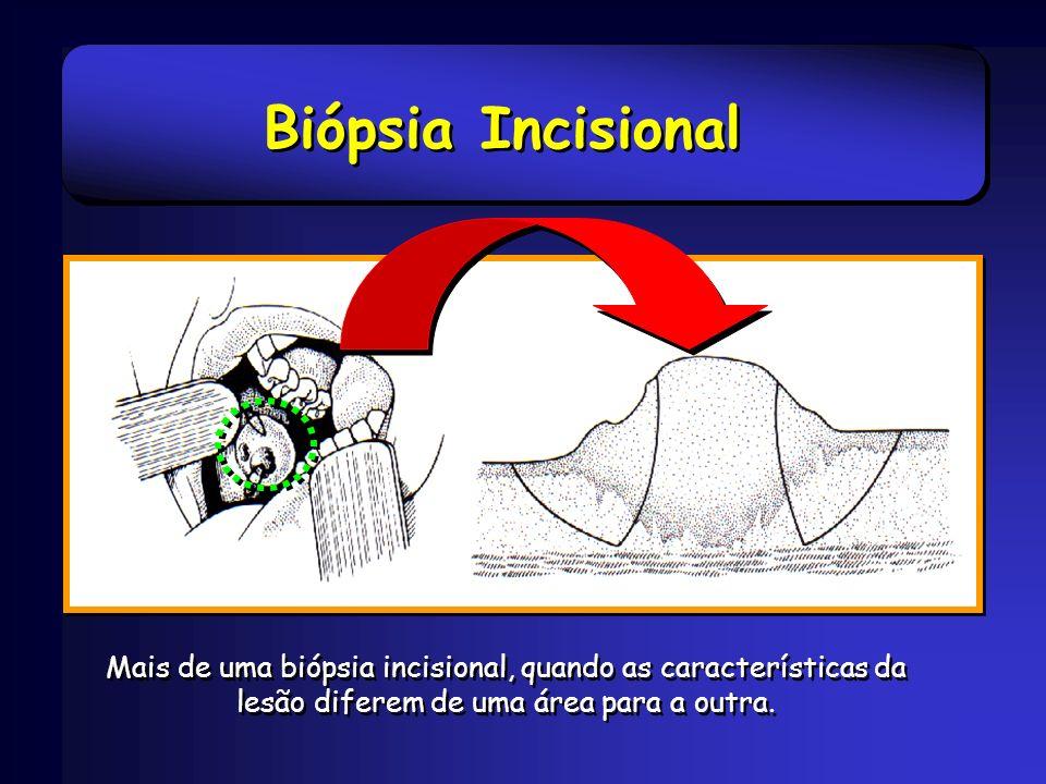Biópsia Incisional Mais de uma biópsia incisional, quando as características da lesão diferem de uma área para a outra.