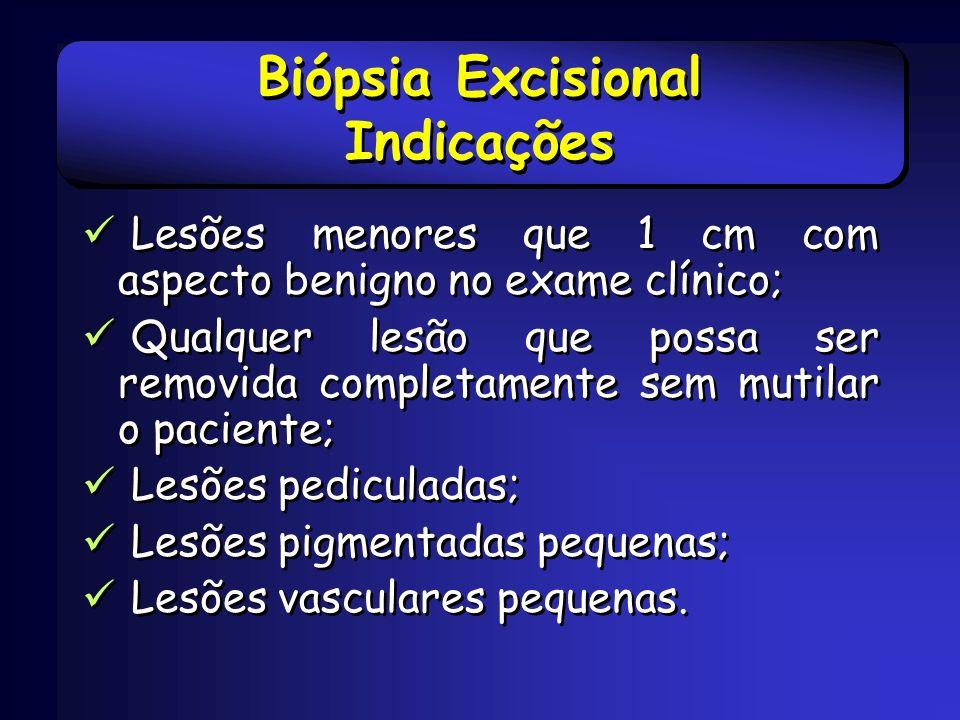Biópsia Excisional Indicações Lesões menores que 1 cm com aspecto benigno no exame clínico; Qualquer lesão que possa ser removida completamente sem mu