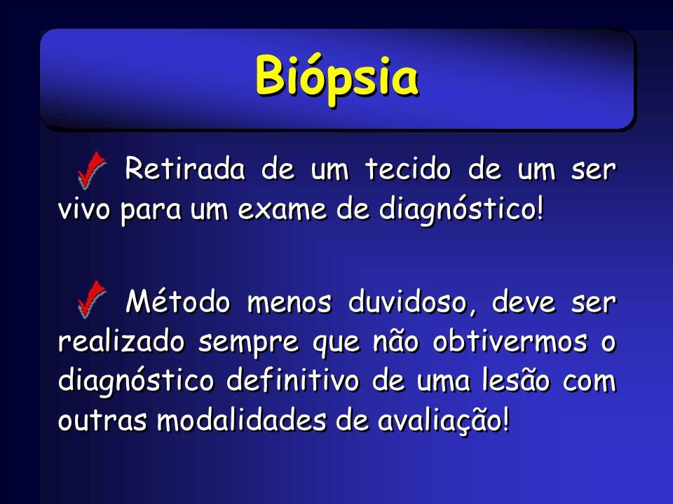 Biópsia Retirada de um tecido de um ser vivo para um exame de diagnóstico! Método menos duvidoso, deve ser realizado sempre que não obtivermos o diagn