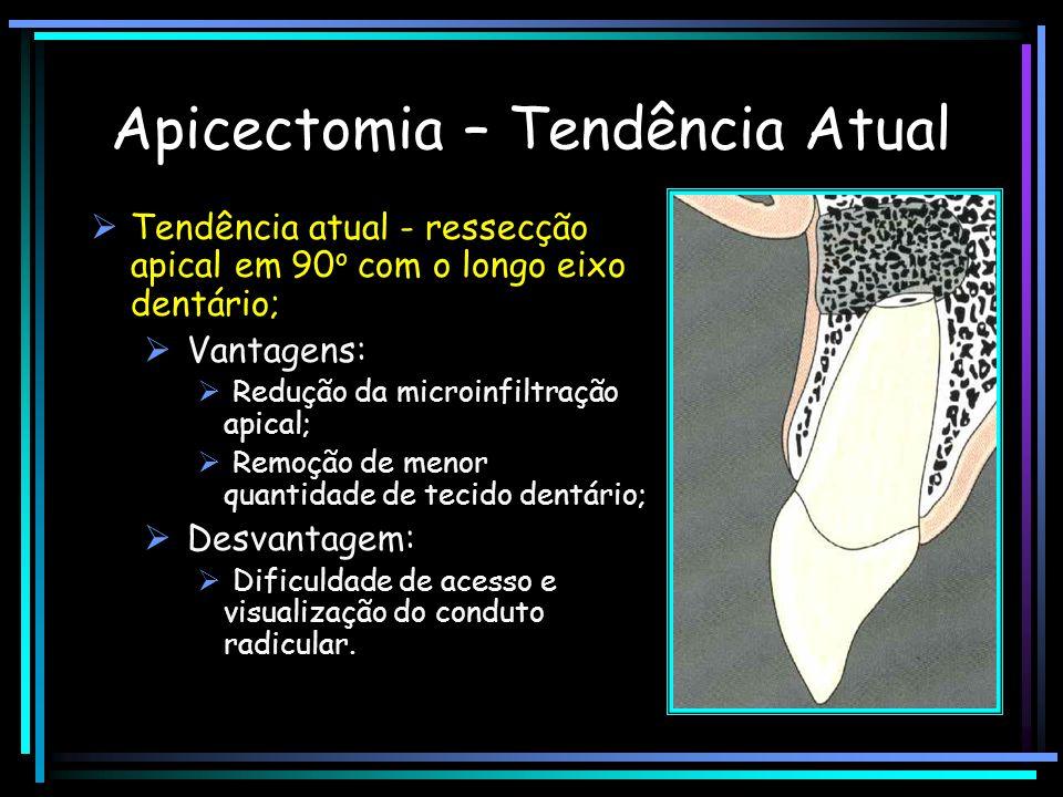 Apicectomia – Tendência Atual Tendência atual - ressecção apical em 90 o com o longo eixo dentário; Vantagens: Redução da microinfiltração apical; Rem