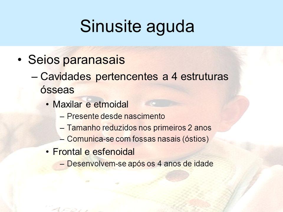 Sinusite aguda –Infecção bacteriana nos seios paranasais –Duração menor que 30 dias