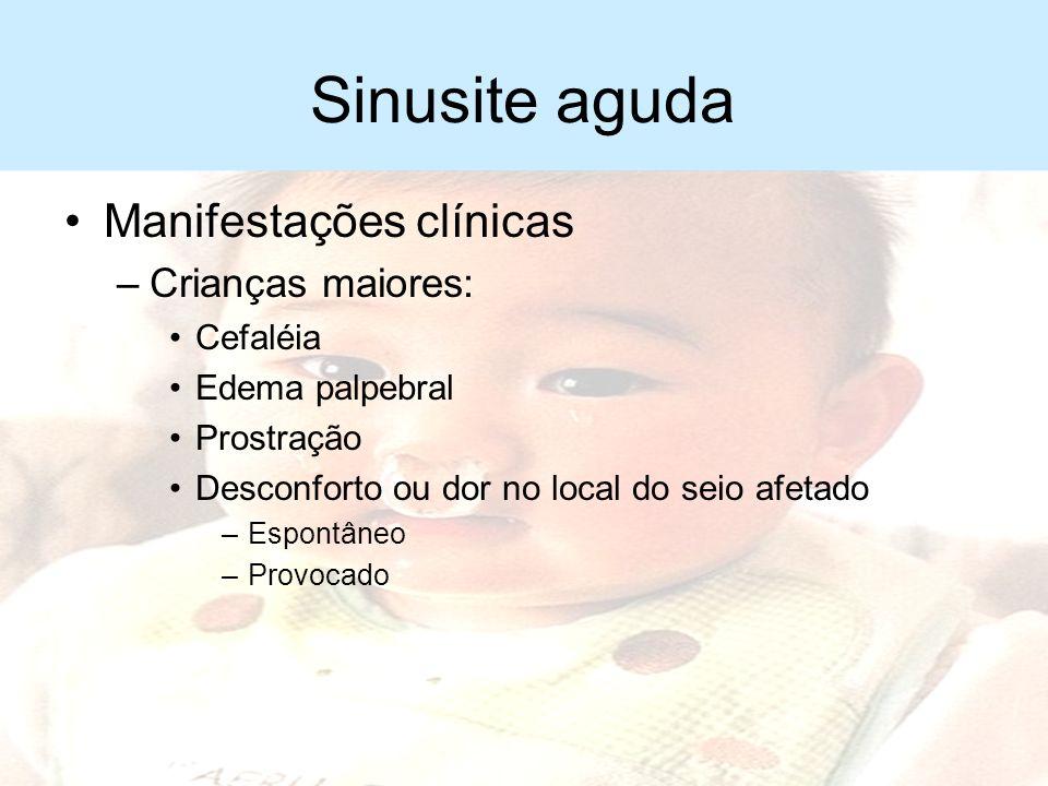 Sinusite aguda Manifestações clínicas –Início lento ou súbito –Manifestações de IVAS mais de 10 dias –Retorno dos sintomas após período de melhora –Ha