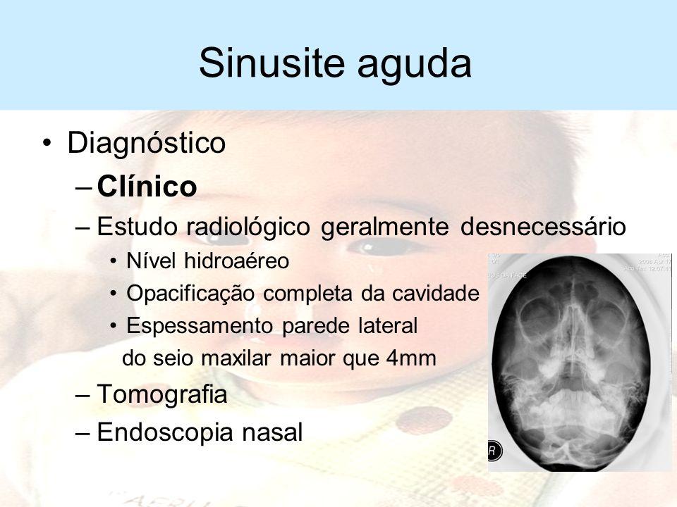 Sinusite aguda Complicações –Sinusite crônica –Osteomielite maxilar –Celulite periorbitária –Meningite