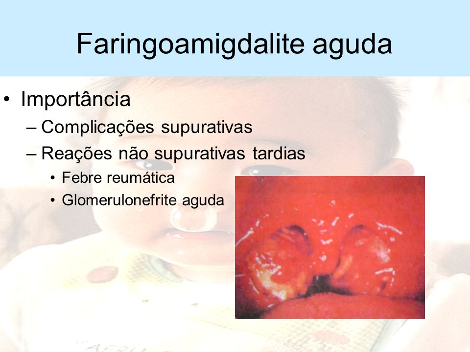 Faringoamigdalite aguda Etiologia –Estreptococo beta-hemolítico do grupo A –Viral –Micoplasma e clamídia –Epstein Barr –Citomegalovírus –Difteria –Hae