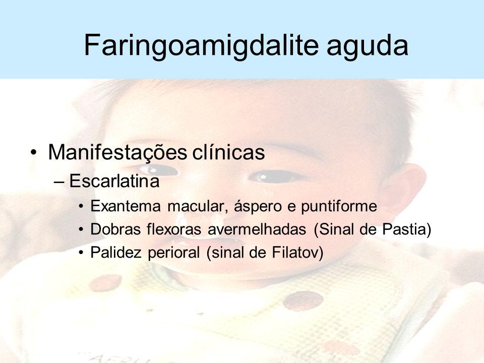 Faringoamigdalite aguda Manifestações clínicas –Orofaringe: Hiperemia Aumento de amígdalas Exsudato amígdalas Petéquias no palato –Adenite cervical bi
