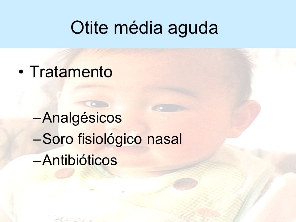 Otite média aguda Manifestações clínicas –Otalgia –Choro constante –Dificuldade alimentação (sucção) –Febre