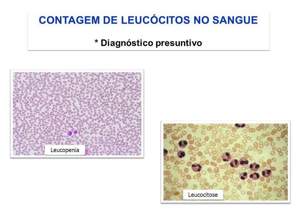 CONTAGEM DE LEUCÓCITOS NO SANGUE * Diagnóstico presuntivo CONTAGEM DE LEUCÓCITOS NO SANGUE * Diagnóstico presuntivo Leucocitose Leucopenia