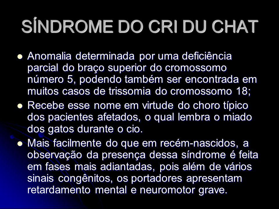 SÍNDROME DO CRI DU CHAT Anomalia determinada por uma deficiência parcial do braço superior do cromossomo número 5, podendo também ser encontrada em mu
