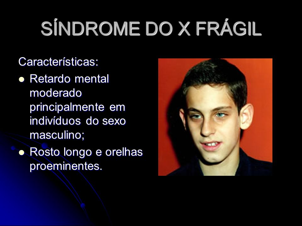 SÍNDROME DO X FRÁGIL Características: Retardo mental moderado principalmente em indivíduos do sexo masculino; Retardo mental moderado principalmente e