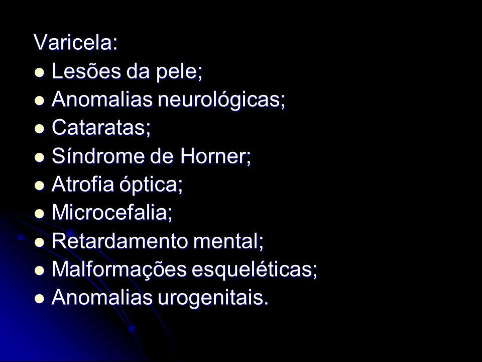 Varicela: Lesões da pele; Lesões da pele; Anomalias neurológicas; Anomalias neurológicas; Cataratas; Cataratas; Síndrome de Horner; Síndrome de Horner