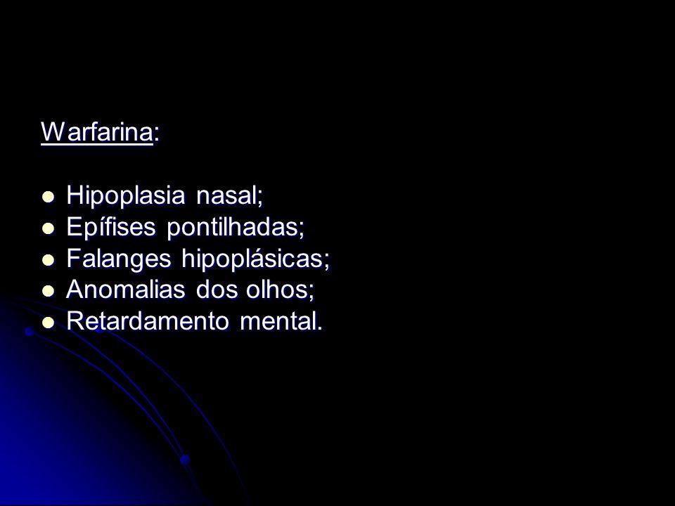 Warfarina: Hipoplasia nasal; Hipoplasia nasal; Epífises pontilhadas; Epífises pontilhadas; Falanges hipoplásicas; Falanges hipoplásicas; Anomalias dos