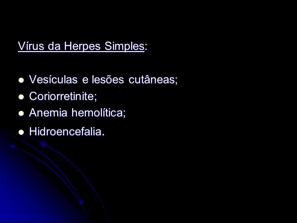 Vírus da Herpes Simples: Vesículas e lesões cutâneas; Vesículas e lesões cutâneas; Coriorretinite; Coriorretinite; Anemia hemolítica; Anemia hemolític