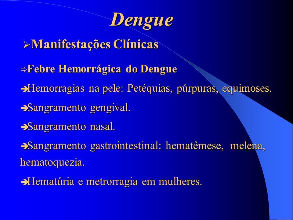 Dengue Febre Hemorrágica do Dengue Febre Hemorrágica do Dengue Hemorragias na pele: Petéquias, púrpuras, equimoses. Hemorragias na pele: Petéquias, pú
