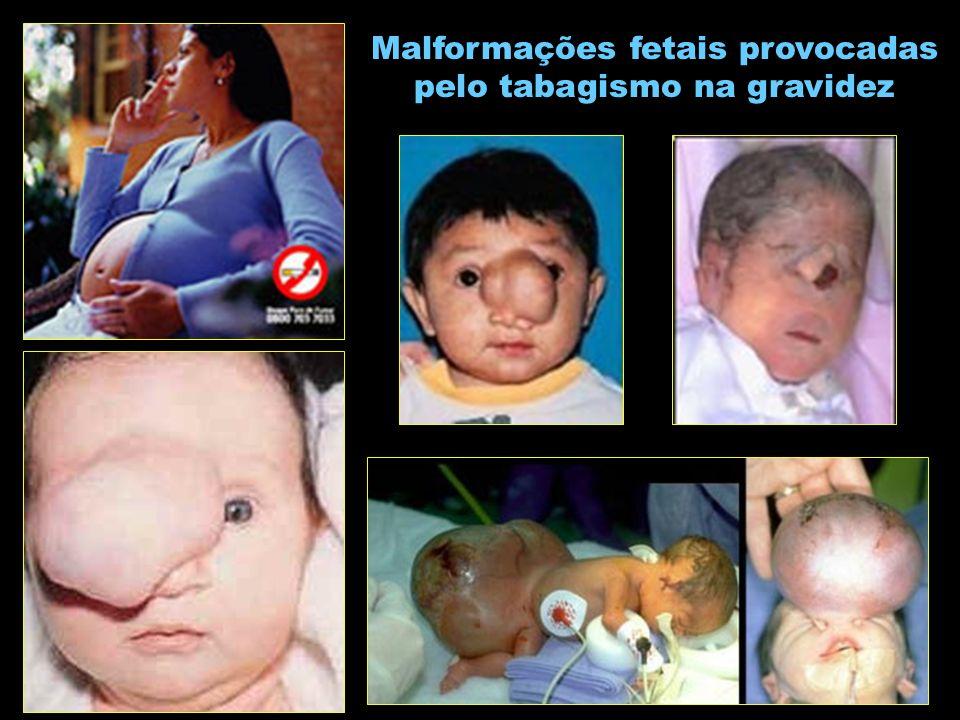 Malformações fetais provocadas pelo tabagismo na gravidez